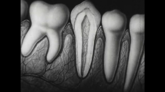 RUSSIA: 1950s: Animation of teeth. Nerves inside tooth. Enamel on tooth.