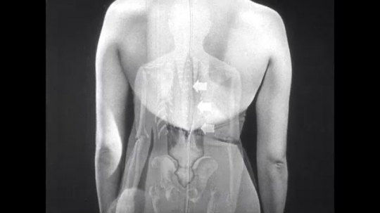 UNITED STATES: 1950s: lady bends side to side. X-ray of human body moving side to side.