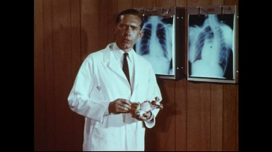 UNITED STATES 1970s: Doctor speaks in front of x-rays / Close up of plastic heart model / View of open heart surgery.