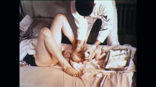 UNITED STATES: 1960s: medic delivers baby in patient