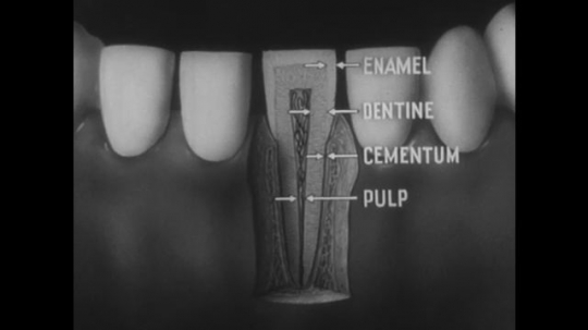UNITED STATES, 1944: Graphic of tooth layers.