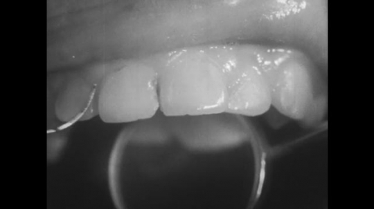 UNITED STATES, 1944: Close up of decay on the side of front tooth.