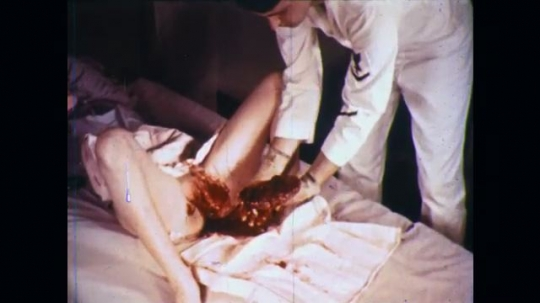 UNITED STATES: 1960s: medic wraps placenta in towel. Medic wraps retained placenta in towel. Medic moves lady