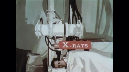 UNITED STATES: 1960s: animation of patient and gamma rays.