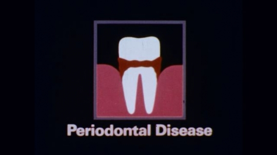 1970s: Animation of tooth and recessing gums with caption ??eriodontal Disease?? microscopic view of organisms moving around.