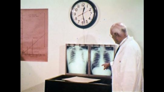 1970s: UNITED STATES: doctor points at x-rays of lungs. Miner smokes cigarette. Men speak at mine. Man offers cigarette to colleague.