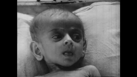 Europe 1940s: malnourished baby in crib.