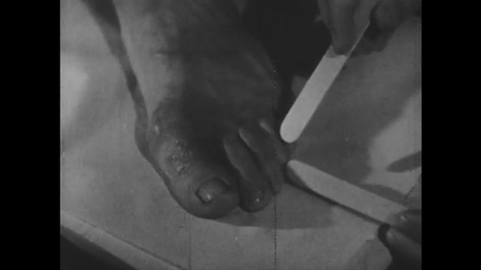 1940s: Hands use tongue depressors to spread apart toes. Man rubs down foot in shower stall.