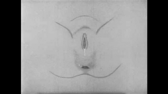 1950s: UNITED STATES: diagram of vaginal opening and episiotomy. Doctor makes incision in vaginal opening.