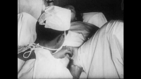1950s: UNITED STATES: doctor stitches lady after child birth. Episiotomy stitches. Doctor swabs lady after surgery