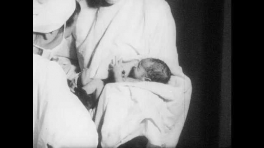 1950s: UNITED STATES: medics clean up baby. Silver nitrate in baby