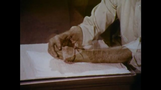 United States: 1970s: severed thumb squirts blood. Close up of man