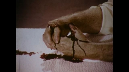 United States: 1970s: hands apply dressing on top of severed thumb. Bandage soaks with blood.