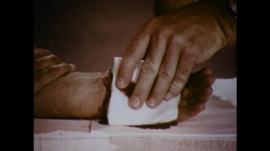 United States: 1970s: hand places gauze over wrist wound. Fingers apply pressure to wrist.