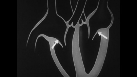 United States, 1930s: arrows point to valves of heart on animation. Position of valves as heart pumps blood.