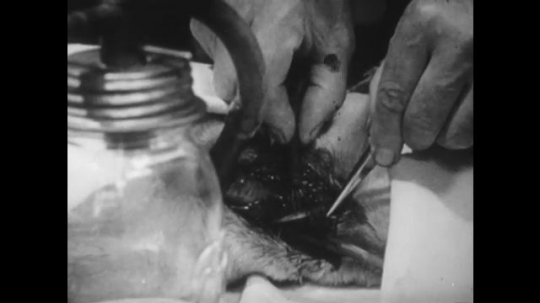 United States, 1930s: hands dissect heart. Numbers on scale. Numbers fall on scale. Fluid flows from pipe into beaker.