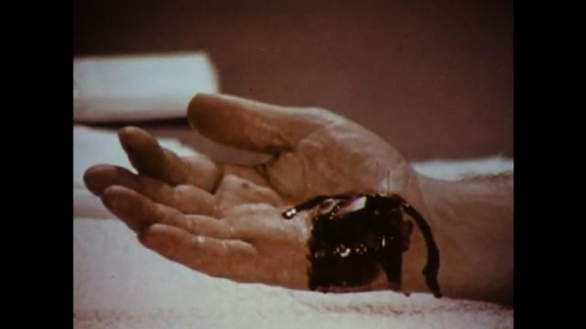 United States: 1970s: foot wound. Wound to palm of hand. Man sits with arm resting on table. Man cleans wound to hand. Man applies dressings to hand.