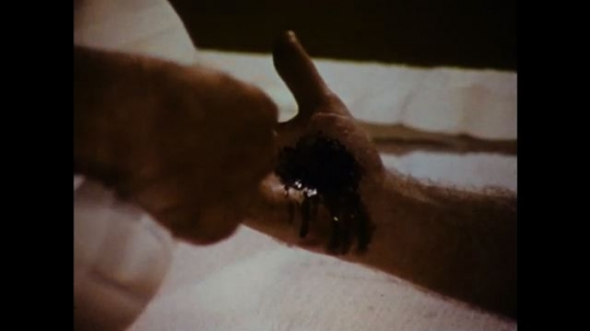 United States: 1970s: close up of blood on hand wound. Man applies bandage to wound. Man criss crosses bandage around palm of hand and wrist. Man ties knot in bandage.