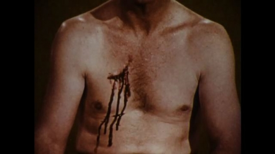United States: 1970s: bare chest with blood and wound. Man wraps bandage around patient