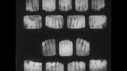UNITED STATES, 1944: X-rays of teeth are shown and patients are worked on in dental office.